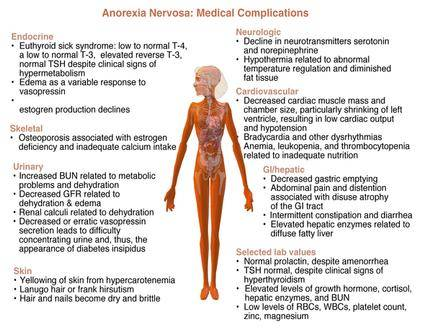 ANOREXIA NERVOSA & MEDICAL MARIJUANA - complications