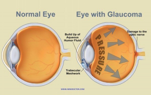 MEDICAL MARIJUANA FOR GLAUCOMA