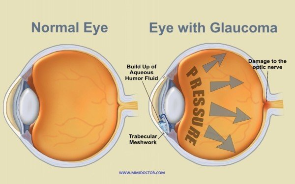 HIGH-EYE-PRESSURE-(IOP)- &- MEDICAL MARIJUANA-glaucoma-mmjdoctor