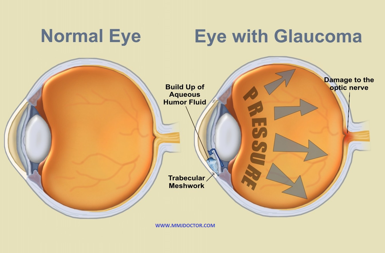 HIGH EYE PRESSURE (IOP) & MEDICAL MARIJUANA glaucoma - mmj doctor
