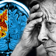 Alzheimer's disease - medical marijuana