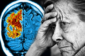 MEDICAL MARIJUANA FOR ALZHEIMER`S