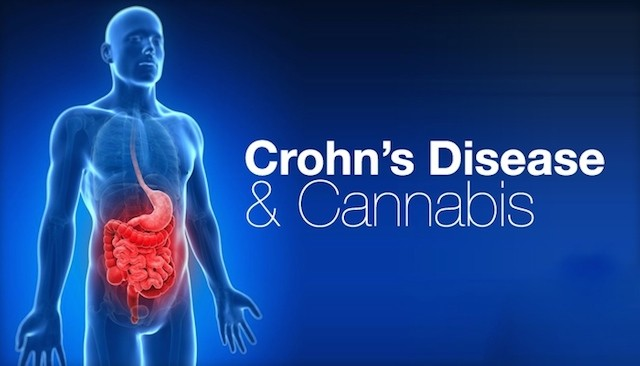 crohns-disease-and-cannabis-mmjdoctor