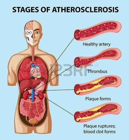 diagram-showing-stages-of-atherosclerosis-in-human-illustration-medical-cannabis-marijuana-mmjdoctor