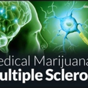 MULTIPLE SCLEROSIS (MS) & MEDICAL MARIJUANA