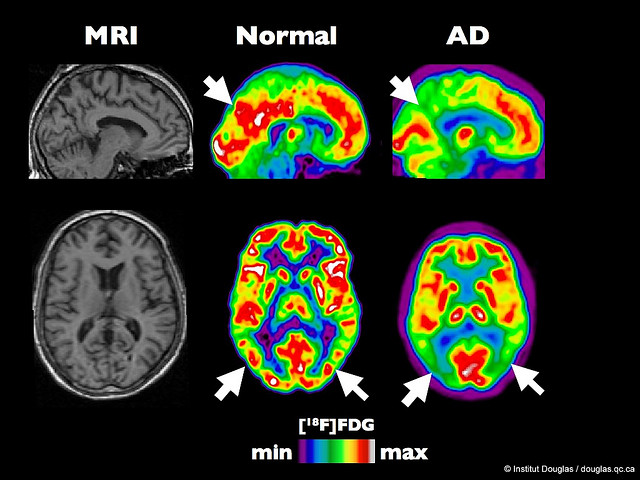 mmj-mri-medical-marijuana-ifluence-on-brain