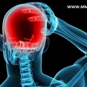 MIGRAINES & MEDICAL MARIJUANA | MMJ DOCTOR ONLINE