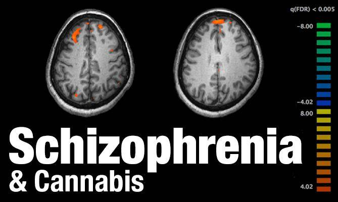 schizophrenia- and-medical-cannabis-mmj-doctor