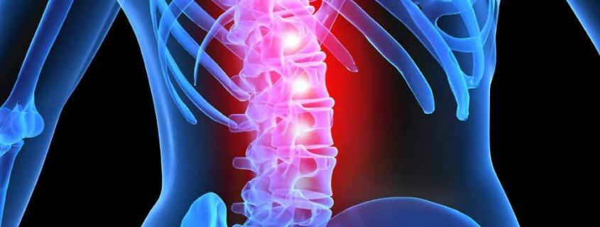 spinalcord-injiry-mmj-doctor-medical-cannabis