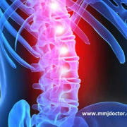 SPINAL INJURY & MEDICAL MARIJUANA | MMJ DOCTOR ONLINE